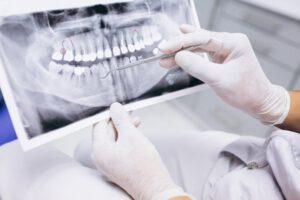 Dasarmonía Dentofacial