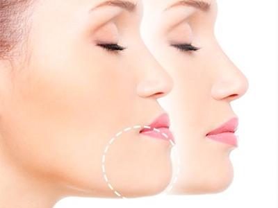 Cirugía Oral Ortognatica